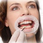 расширитель для щек / губной / стоматологический