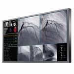 монитор для операционного зала / для медицинских снимков / разрешение 4K / LCD