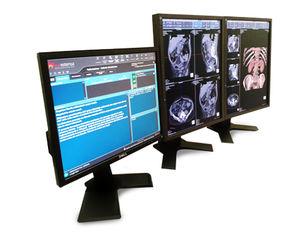 программное обеспечение для визуализации / для диагностики / для медицинских снимков