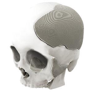 черепной имплантат на заказ