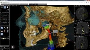 модуль программного обеспечения для анализа / для визуализации 3D / для измерений / для обработки