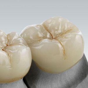 стоматологический материал из стеклокерамики