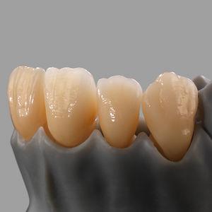стоматологический материал из двуокиси циркония