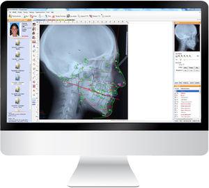 программное обеспечение для цефалометрического анализа / для управления / для диагностики / для ортодонтии