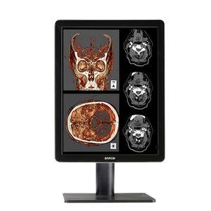 монитор для диагностики
