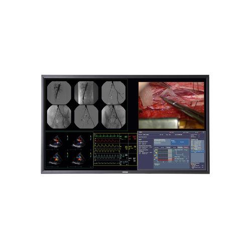 монитор для хирургии / разрешение 4K / 58