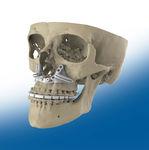 размер резекции для челюстно-лицевого восстановления