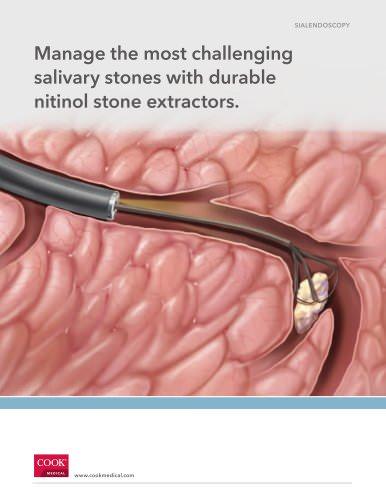 Salivary Stone Extractors